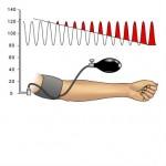 blood pressure calibration