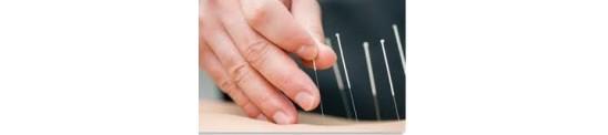 Akupunkturnåle
